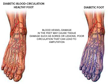 diabetic foot circulation illustration