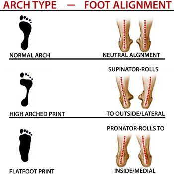 high foot arch